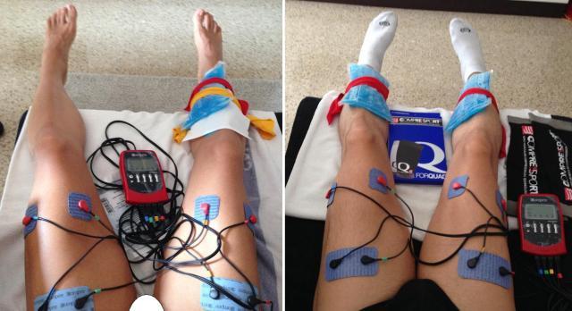 Diferentes días recuperando con un electroestimulador muscular.