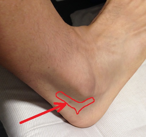 Zona de la lesión del pie derecho.